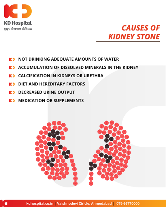 #KidneyStones are slowly becoming a #lifestyle disease! Let's see the causes & the preventive care for these!  #KDHospital #GoodHealth #Ahmedabad #Gujarat #India