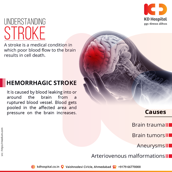 "A stroke is a ""brain attack"". It can happen to anyone at any time. It occurs when blood flow to an area of brain is cut off.  For appointment call: +91 79 6677 0000  #KDHospital #goodhealth #health #wellness #fitness #healthy #healthiswealth #wealth #healthyliving #joy #patientscare #Ahmedabad #Gujarat #India"