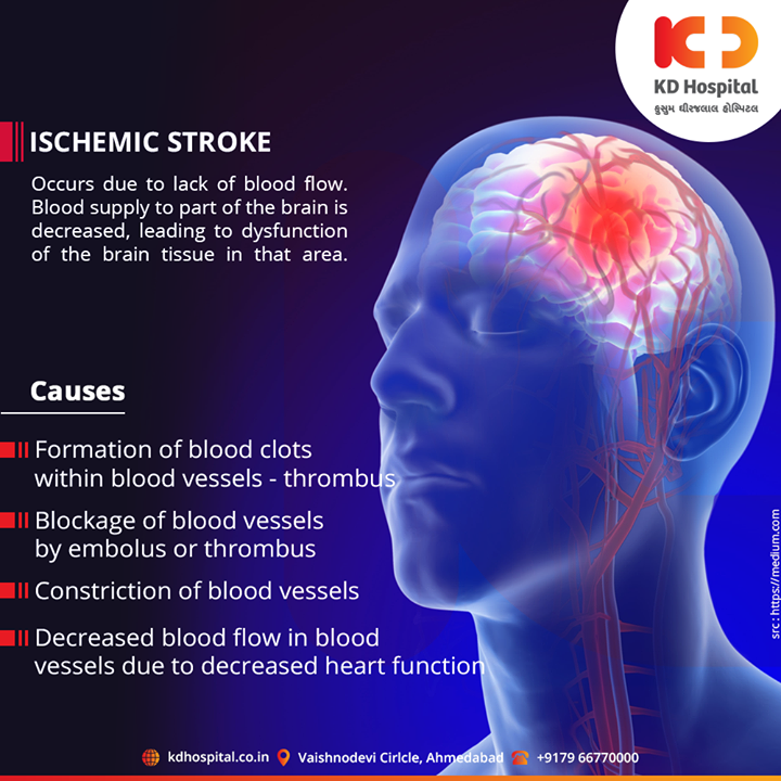 Ischemic stroke, damage to the brain from interruption of its blood supply.  For appointment call: +91 79 6677 0000  #KDHospital #goodhealth #health #wellness #fitness #healthy #healthiswealth #wealth #healthyliving #joy #patientscare #Ahmedabad #Gujarat #India