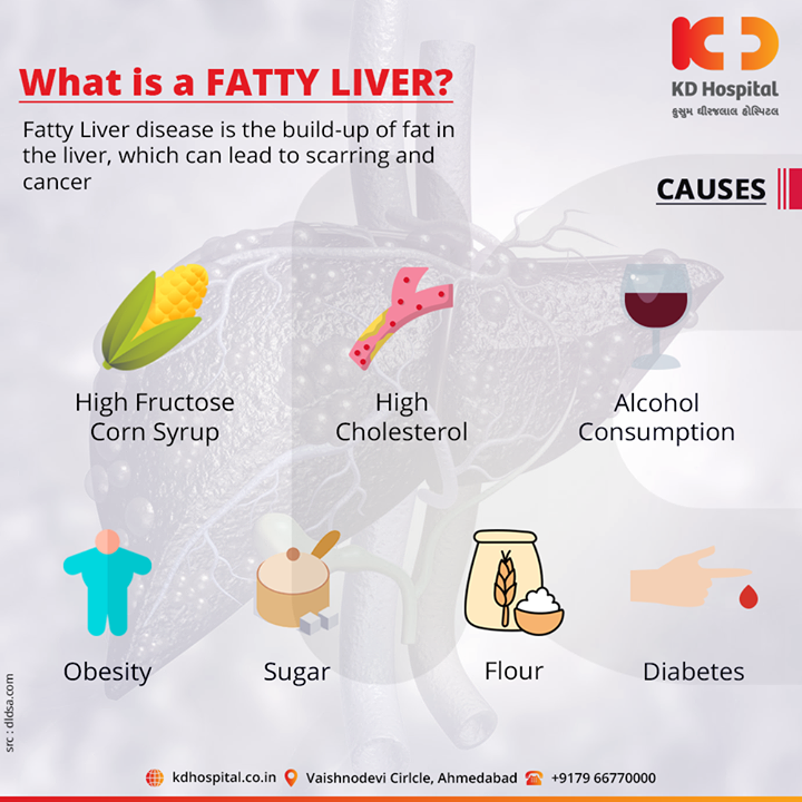 Fatty liver is also known as hepatic steatosis. It happens when fat builds up in the liver.  For appointment call: +91 79 6677 0000  #KDHospital #goodhealth #health #wellness #fitness #healthy #healthiswealth #wealth #healthyliving #joy #patientscare #Ahmedabad #Gujarat #India