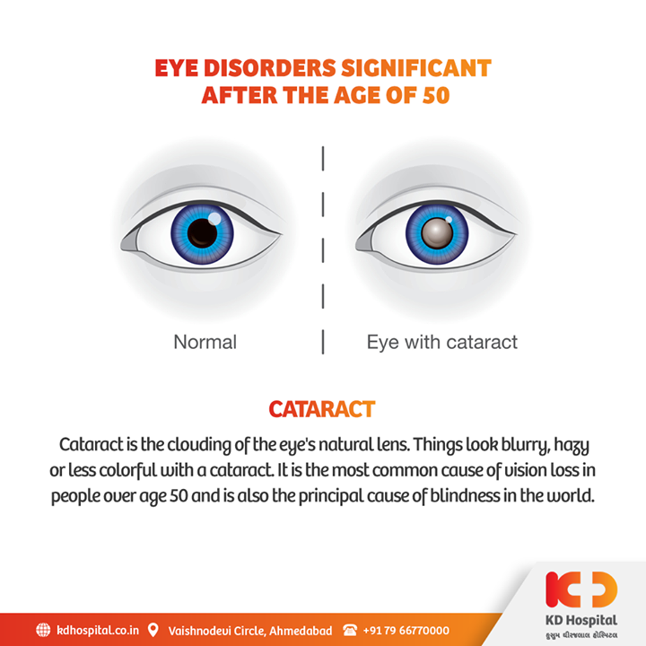 Cataract is the most accountable cause of world blindness (51%), depicting about 20 million people worldwide. Early treatment of cataract can help prevent the blindness on a long run.    KD Hospital is having a free eye consultation from 17/11/2020 to 30/11/2020 for the patients above the age of 50. Call +918980280802 or +916359603634 between 9:00 AM to 5:00 PM to book an appointment. Additionally, we have Cashless Facilities available at the hospital.   #KDHospital #eyecheckup #cataract #blindness #blind #cataractsurgery #blindnessawareness  #DoctorsOfInstagram #Diagnosis #Therapeutics #goodhealth #pandemic #socialmedia #socialmediamarketing #digitalmarketing #wellness #wellnessthatworks #Ahmedabad #Gujarat #India