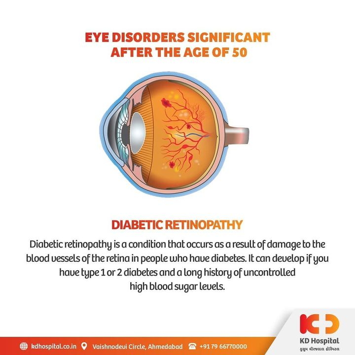 Diabetic retinopathy may take several years to the point it could blind your eye-sight if left untreated and undiagnosed.   KD Hospital is having a free eye consultation from 17/11/2020 to 30/11/2020 for the patients above the age of 50. Call +918980280802 or +916359603634 between 9:00 AM to 5:00 PM to book an appointment. Additionally, we have Cashless Facilities available at the hospital.   #KDHospital #eyecheckup #diabeticretinopathy #retinopathy #blindness #blind #cataractsurgery #blindnessawareness #DoctorsOfInstagram #Diagnosis #Therapeutics #goodhealth #pandemic #socialmedia #socialmediamarketing #digitalmarketing #wellness #wellnessthatworks #Ahmedabad #Gujarat #India
