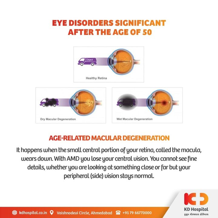 Age-Related Macular Degeneration is an eye disorder that blurs one's sharp, central vision which is required for daily chores like reading or driving.   KD Hospital is having a free eye consultation from 17/11/2020 to 30/11/2020 for the patients above the age of 50. Call +918980280802 or +916359603634 between 9:00 AM to 5:00 PM to book an appointment. Additionally, we have Cashless Facilities available at the hospital.  #KDHospital #eyecheckup #ARMD #MacularDegeneration #blindness #blind #cataractsurgery #blindnessawareness #DoctorsOfInstagram #Diagnosis #Therapeutics #goodhealth #pandemic #socialmedia #socialmediamarketing #digitalmarketing #wellness #wellnessthatworks #Ahmedabad #Gujarat #India