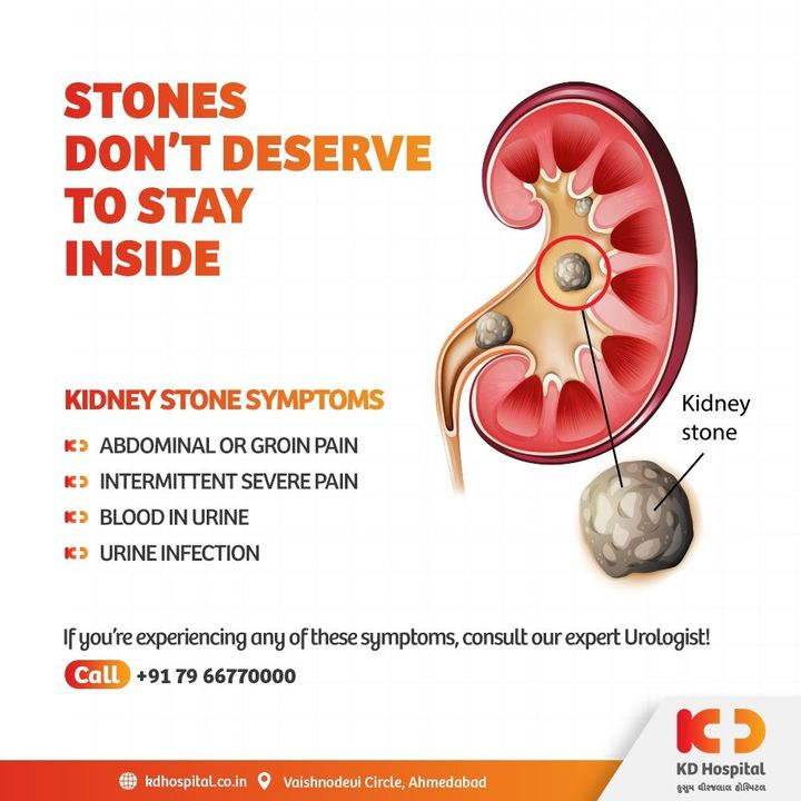 Kidney stones could cause very intense pain on the sides of your back or in the abdomen that may hinder your day to day activities. Consult our expert urologist if you have any of these symptoms.   Call +917966770000 to book an appointment for urology consultation.   #KDHospital #RenalColic #RenalStone #KidneyStones #Urology #Urologist #Covid19 #Covid #DoctorsOfInstagram #Diagnosis #Therapeutics #goodhealth #pandemic #socialmedia #socialmediamarketing #wellness #wellnessthatworks #Ahmedabad #Gujarat #India