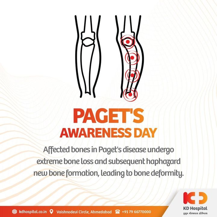 Early detection of Paget's disease can help the involved one live a better life with apt treatment options and exercise. Let's raise awareness for Paget's disease by sharing the information about it.  #KDHospital #PagetsDisease #PagetsAwarenessDay #BoneHealth #BoneRehab #NABHHospital #QualityCare #hospitals #doctors #healthcare #covid #CovidVaccine #medical #health #medicine #coronavirus #staysafe #physicians #surgery #StayAware #StaySafe #pandemic #Ahmedabad #Gujarat #India