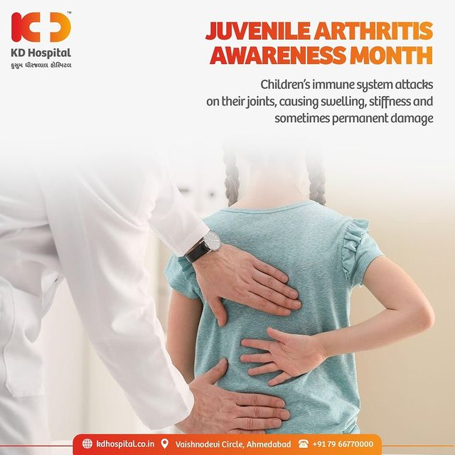 """Juvenile Arthritis is caused by inflammation in the joints & causes pain, swelling, stiffness in the joints. It is a common misconception that only """"old"""" people are affected by arthritis. Arthritis also affects children.   #KDHospital #Arthritis #JuvenileArthritis  #Detection #Diagnosis #Therapeutics #Awareness #wellness #goodhealth #wellnessthatworks #Nursing #NABHHospital #QualityCare #hospitals #healthcare #physicians #explore #surgeon #Ahmedabad #Gujarat #India"""