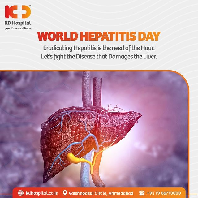 """""""Hepatitis Can't-Wait""""  World Hepatitis Day ensures that all of us take our liver health sincerely to prevent hepatitis and spread the word about it to achieve a hepatitis-free future together.   Also, KD Hospital is offering concessional rates on Gastroscience Consultation, call +919825993335 to book your appointment.   #KDHospital #WorldHepatitisDay #Hepatitis #Liver #LiverDiseases #GastroSciences #GastroEnterology #GastroSurgery #Diagnosis #Therapeutics #Awareness #wellness #goodhealth #wellnessthatworks #Nursing #NABHHospital #QualityCare #hospital #explore #healthcare #physicians #surgeon #Ahmedabad #Gujarat"""